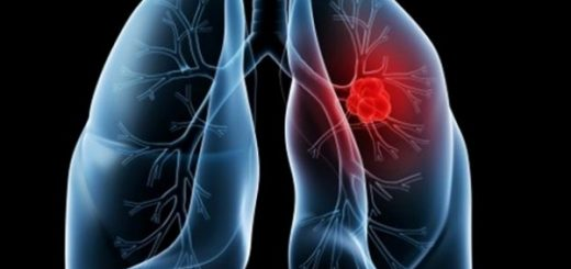 cancer-pulmonar-600x450
